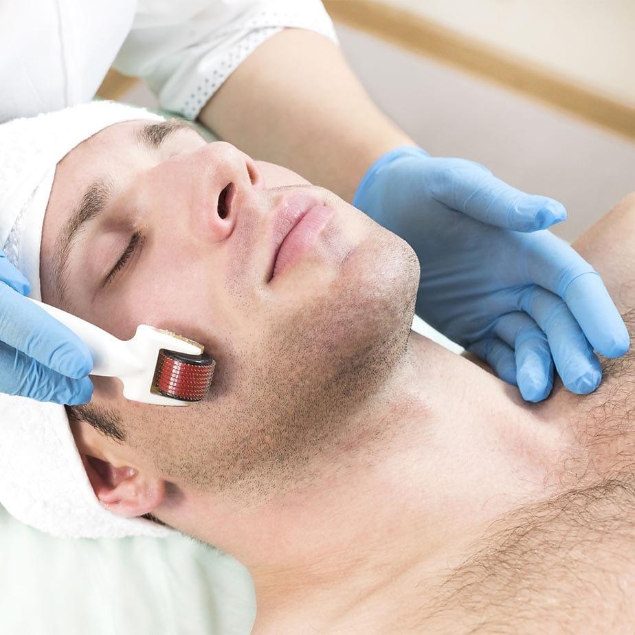 derma roller for beard